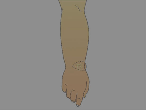 Watch video - Lymph