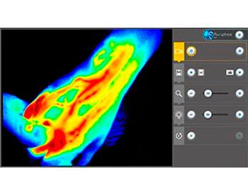 Indocyanine Green (ICG) Lymphography - Fluobeam® 800
