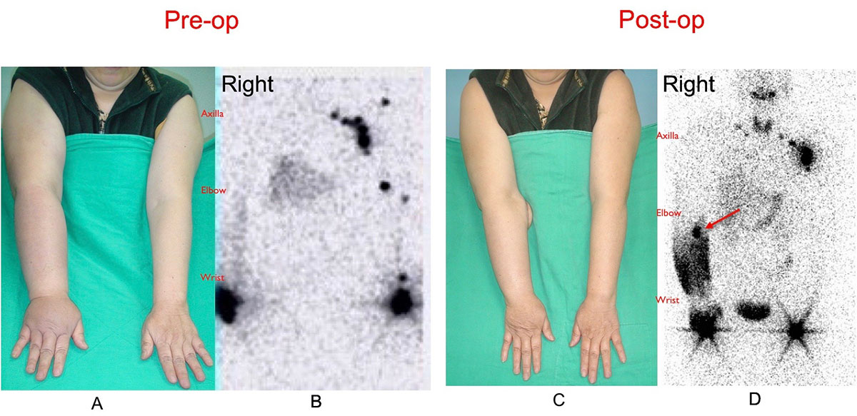 Before and After - 68-year-old female patient who was a victim of right upper limb lymphedema underwent vascularized groin lymph node flap transfer to right elbow