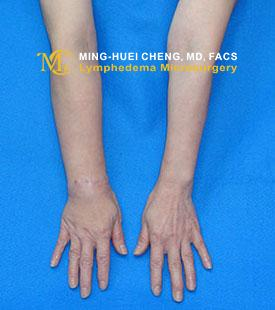 Lymphedema - After Treatment photo - hands, patient 1