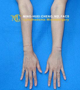 Lymphedema - After Treatment photo - hands, patient 3