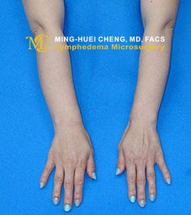 Lymphedema - After Treatment photo - hands, patient 4