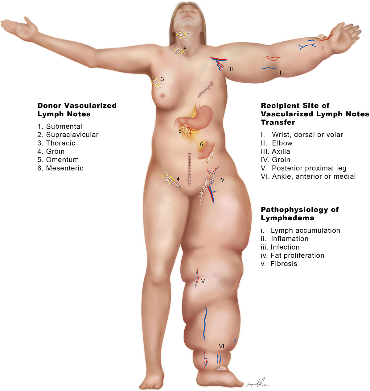 FAQS About Lymphatic System and Lymphedema - schema lymphatic system