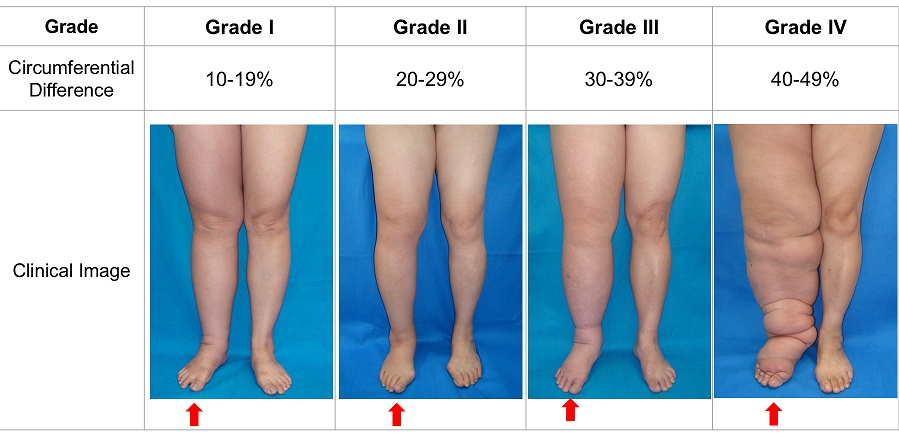 Cheng Lymphedema Grading System Moderate To Severe Cases Ming Huei Cheng Md