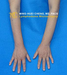 Lymphedema - Before Treatment photo - hands, patient 3