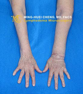 Lymphedema - Before Treatment photo - hands, patient 4