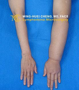 Lymphedema - Before Treatment photo - hands, patient 4
