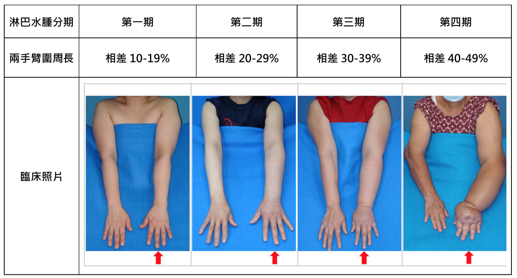 Lymphedema Grading Systems - Before Treatment photos - patients hands