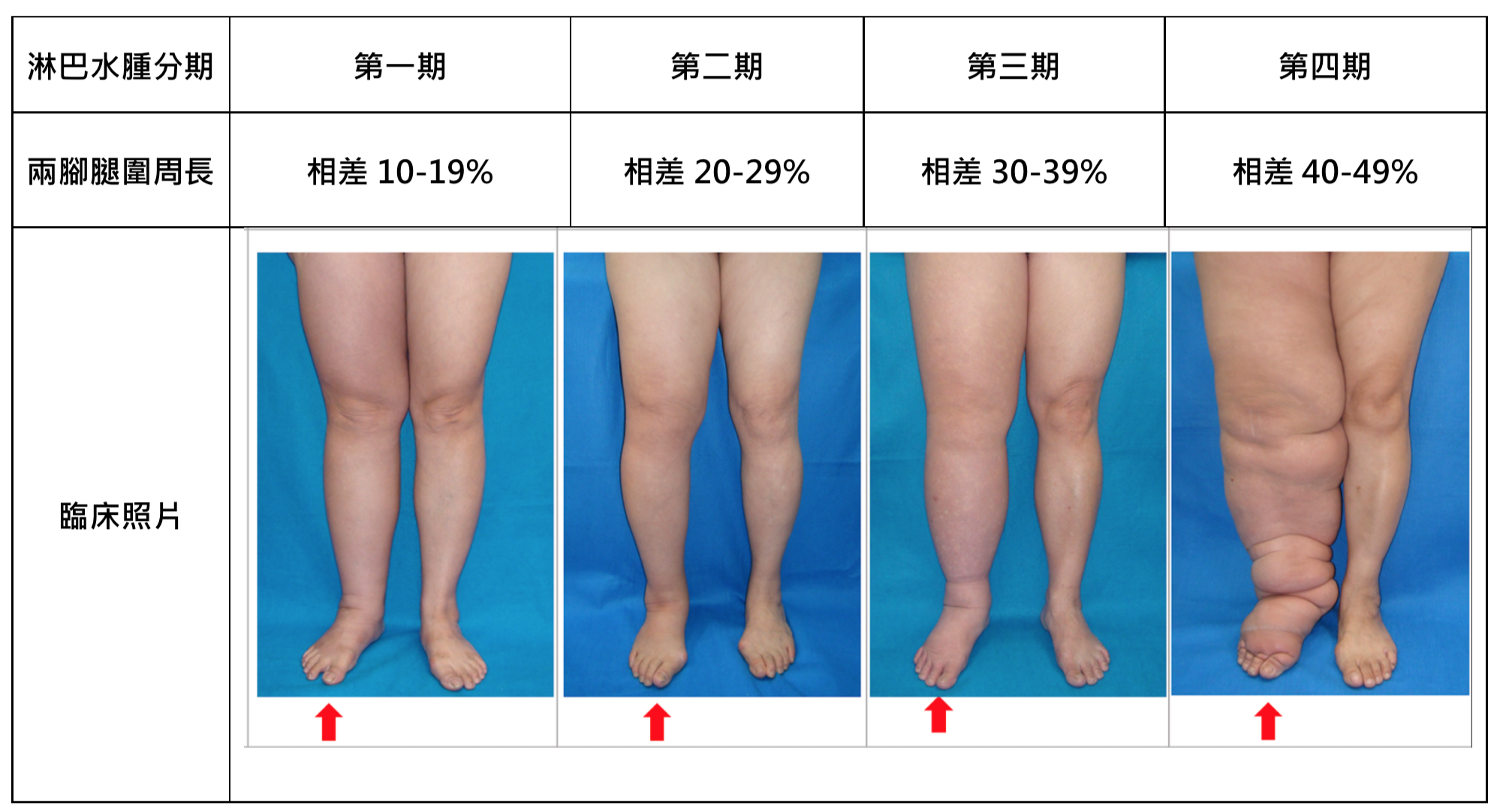 Lymphedema Grading Systems - Before Treatment photos - patients legs